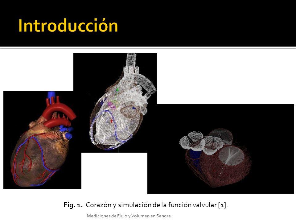 Fig. 1. Corazón y simulación de la función valvular [1].